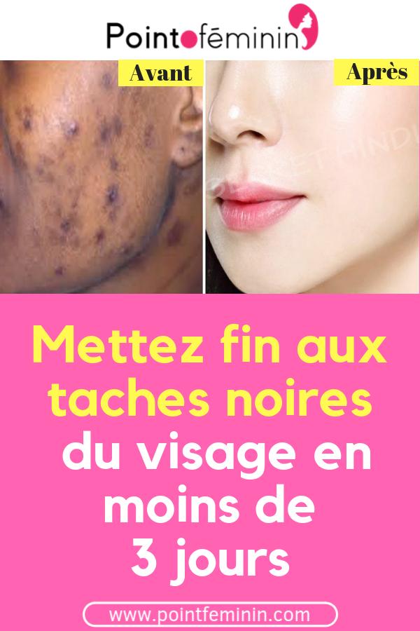 Comment Enlever Les Taches Brunes Sur Le Visage Et Les Mains Naturellement En Une Seule Nuit Tache Beaute Visage Peau Remede Skin Care Skin Santee