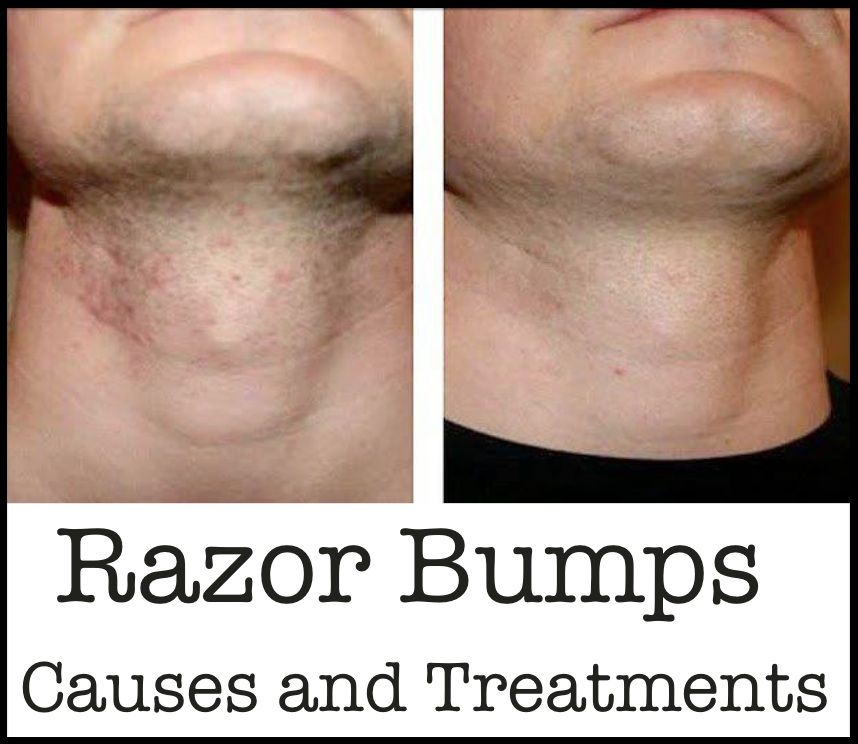 how to get rid of irritation bumps