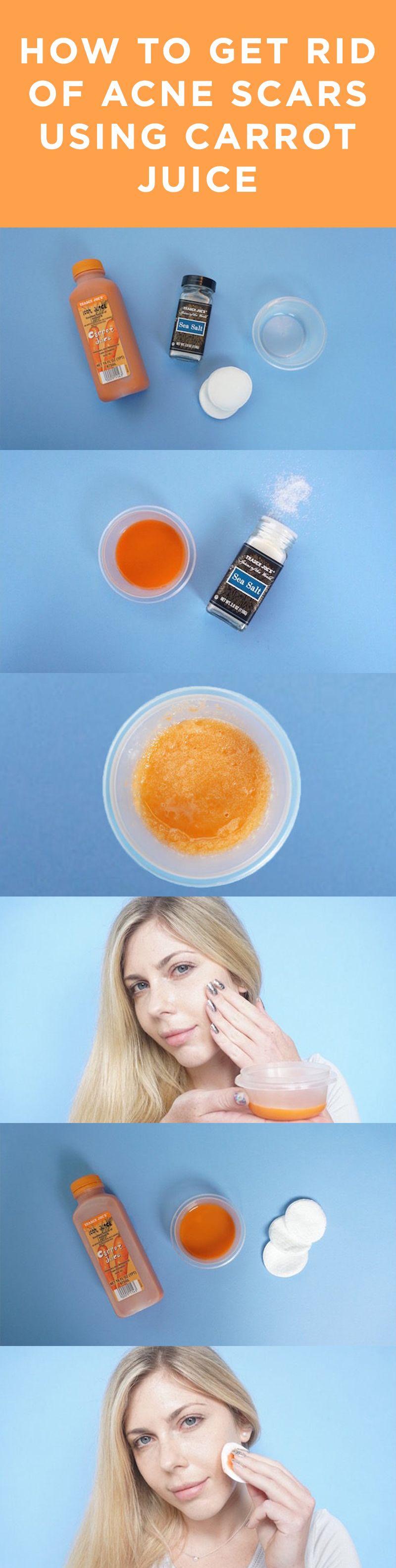 Say goodbye to acne scars for good. #DIY #BeautyHacks #AcneScars #CarrotJuice