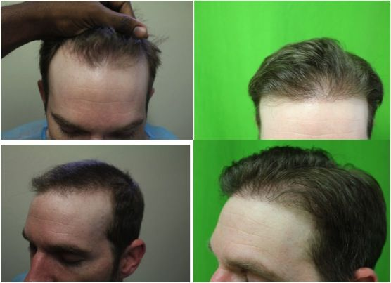 2300 FUE grafts helped this patient finally achieve the hair