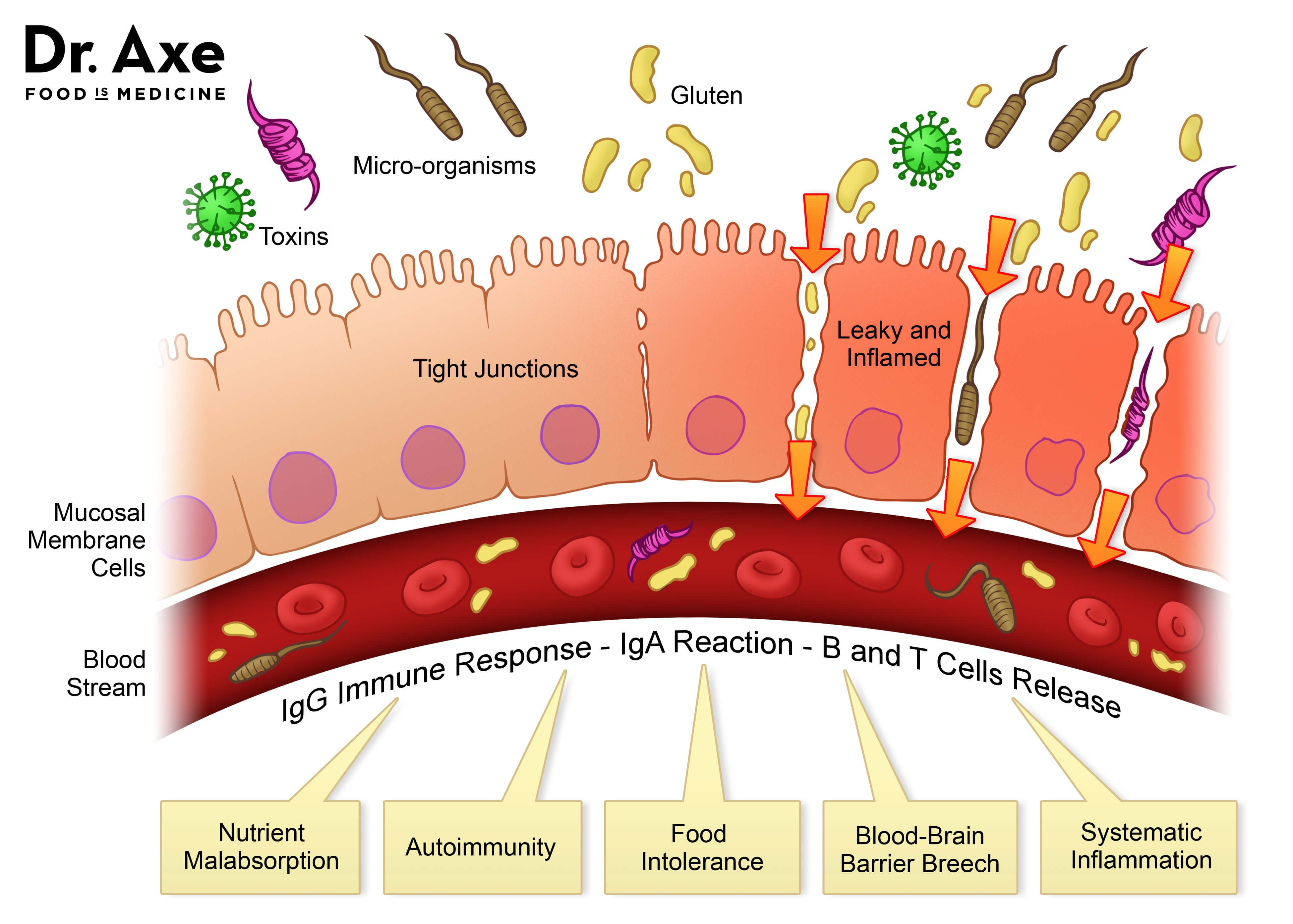 Image result for dr axe leaky gut