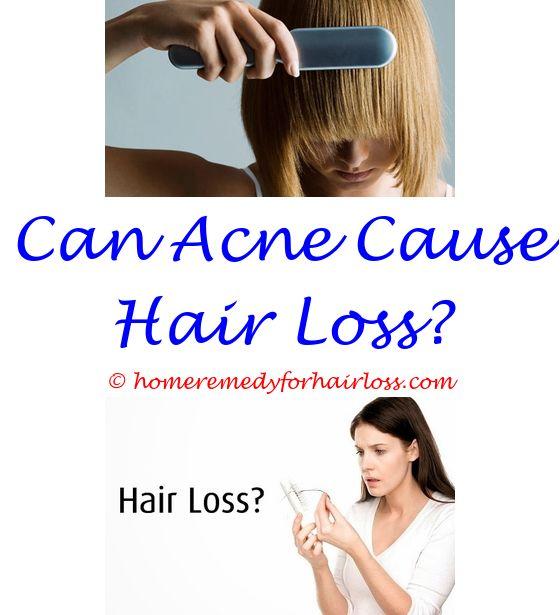 Hair Loss Clinic | Hair loss and Hair regrowth