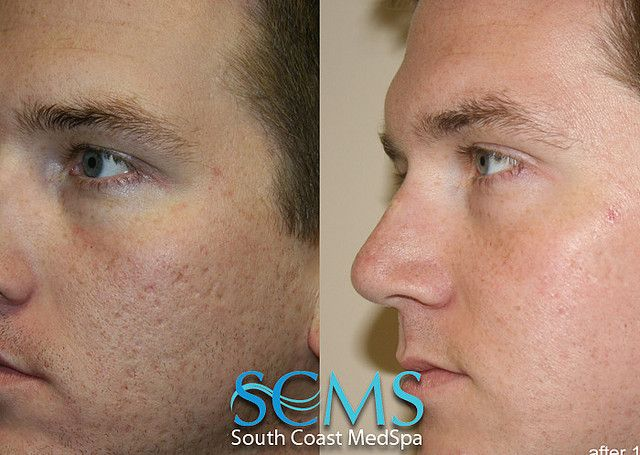 Laser Acne Scar Removal Results After One Treatment At