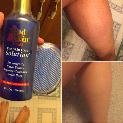 Tend Skin Solution Aka The Perfect Solution For Anyone Who Had Decided Razor Burn And Ingrown Hairs Were Just G Skin Care Solutions Body Skin Care Tend Skin