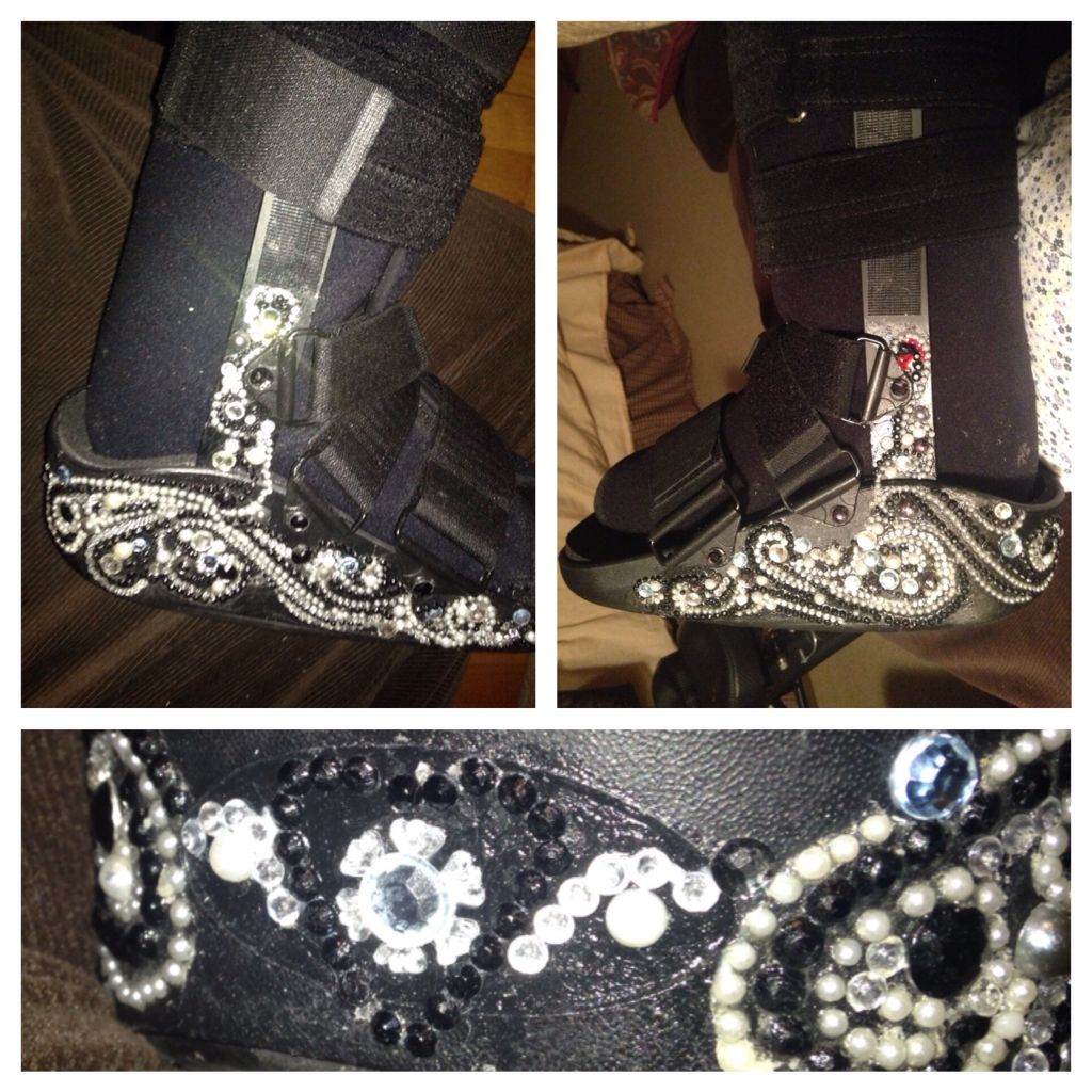bling glitz and glam walking boot cast gots a wedding to go to