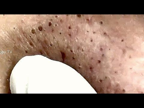 (13) ️ Big Whiteheads - Steatocystoma Multiplex Extraction ...