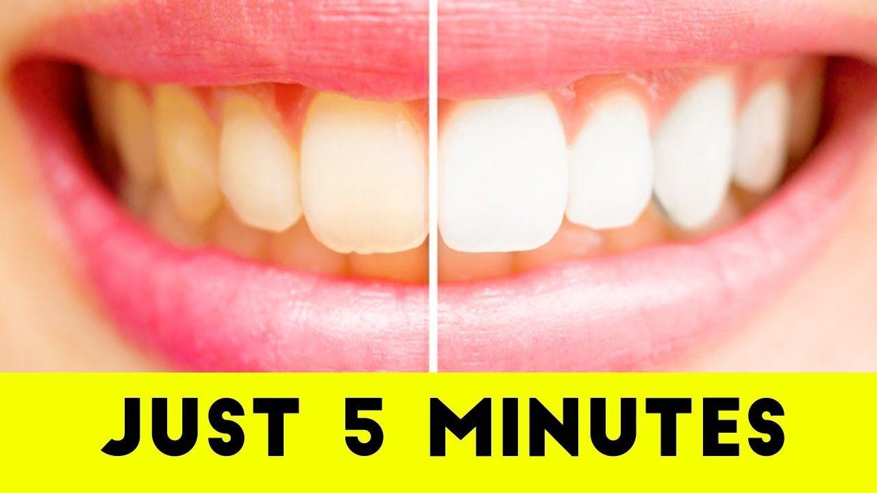 Pin on Whitening Teeth With Baking Soda Teeth Whitening