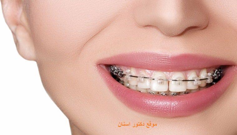 أسباب حدوث إنتكاس بعد إزالة التقويم الاسنان 10 Things Blog