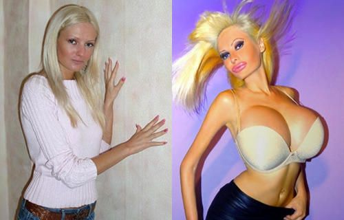 Woman Spends 53 000 On Plastic Surgery To Look Like A Blow Up