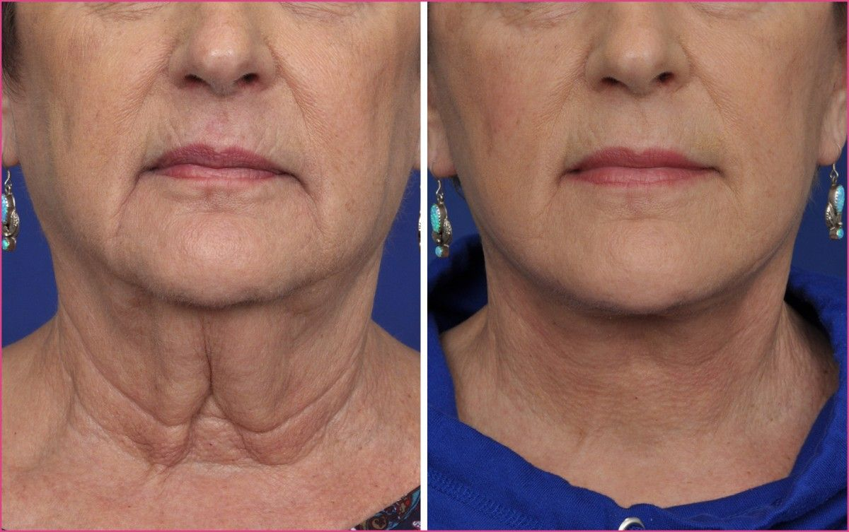 Facelift Surgery Before And After Plastic Surgery Before And After Face Lift Surgery Lower Face Lift Surgery Plastic Surgery