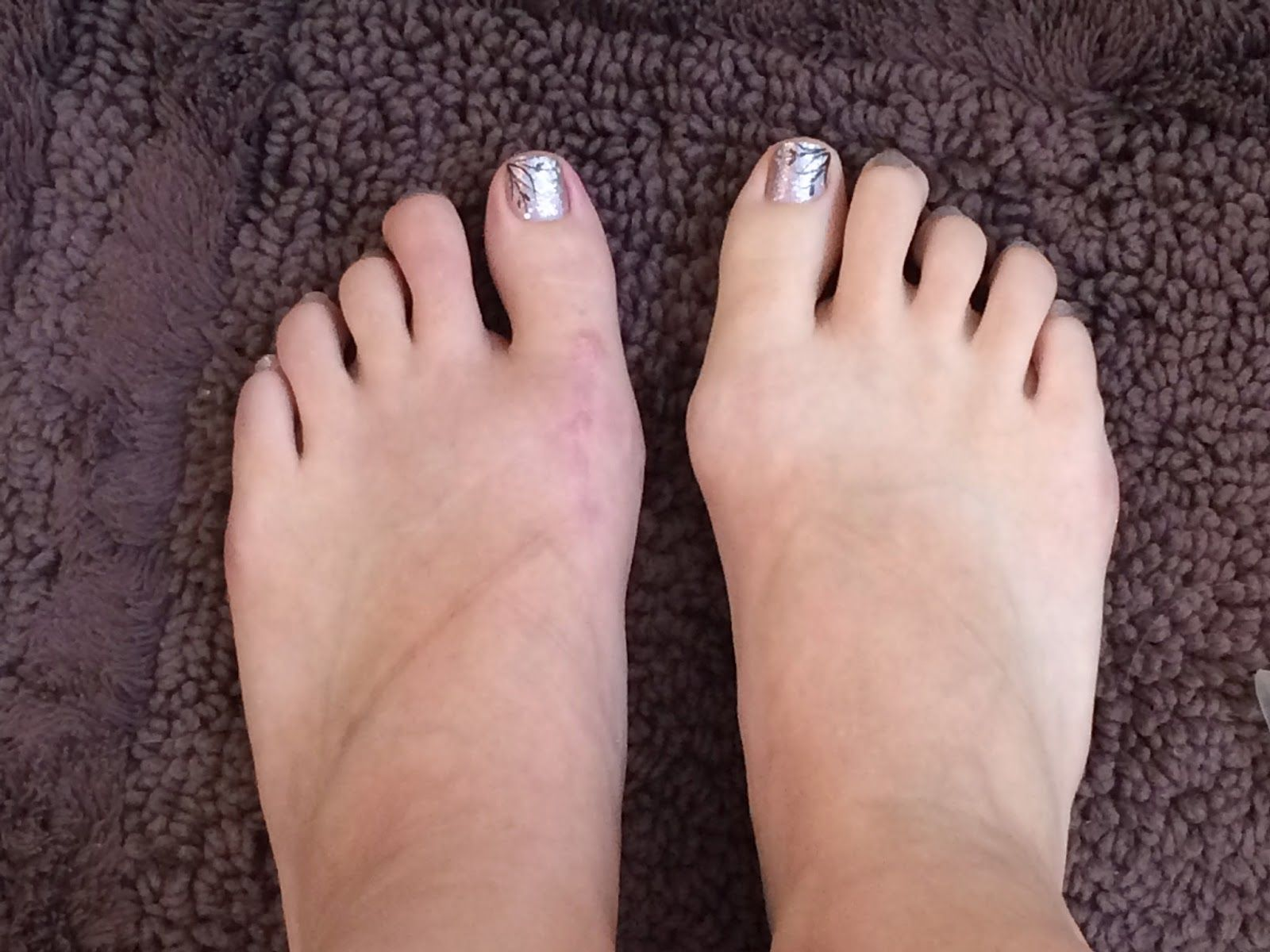 My bunionectomy experience: Week 12. The left foot is not swelling too much and I am very pleased with the outcome so far:)