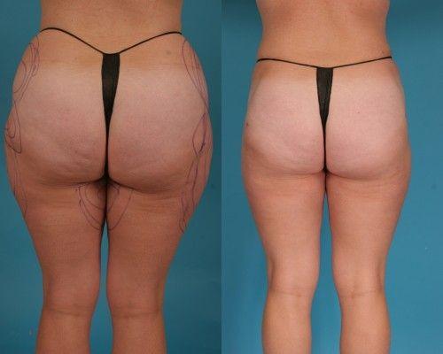 Risques et complications dune réduction mammaire