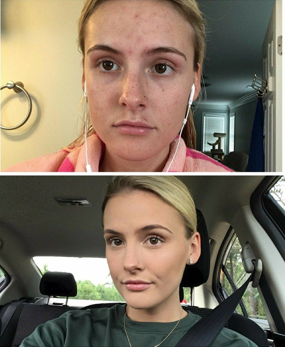 Beauty Blender Or Brush For Full Coverage: Full Acne Coverage: Products I Used! •Benefit The