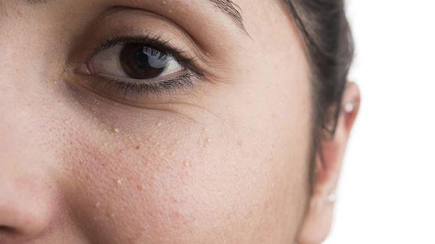 Du hast kleine weiße Pünktchen im Gesicht und bekommst sie