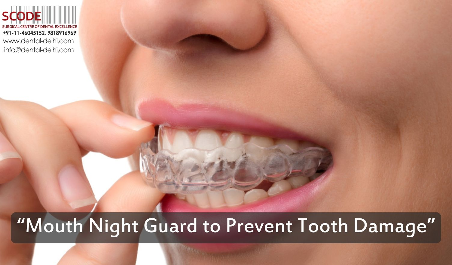 """""""Mouth night guard to prevent tooth damage"""" Dental Delhi"""