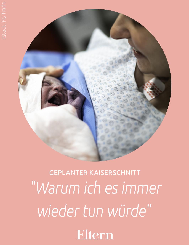 Geplanter Kaiserschnitt 37 0