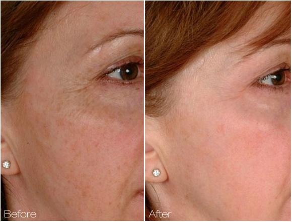 Review Of Cutera 2d Skin Rejuvenation Procedure Laser Skin Care Skin Rejuvenation Cutera Laser