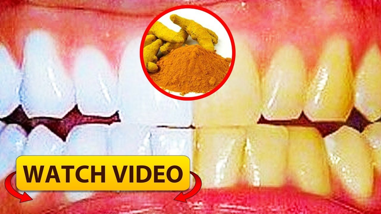 How To Whiten Your Teeth With Turmeric AntiInflammatory