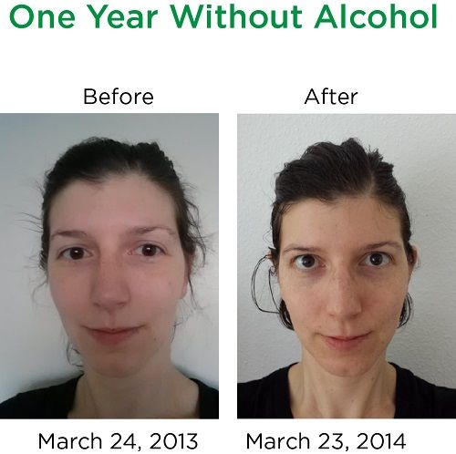 Effects Of Alcohol Before And After Before after one year ...