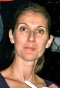 Cold Sore Hard To See But Bottom Right Lip Celine Dion Celine Dion Without Makeup Celine Marie Claudette Dion