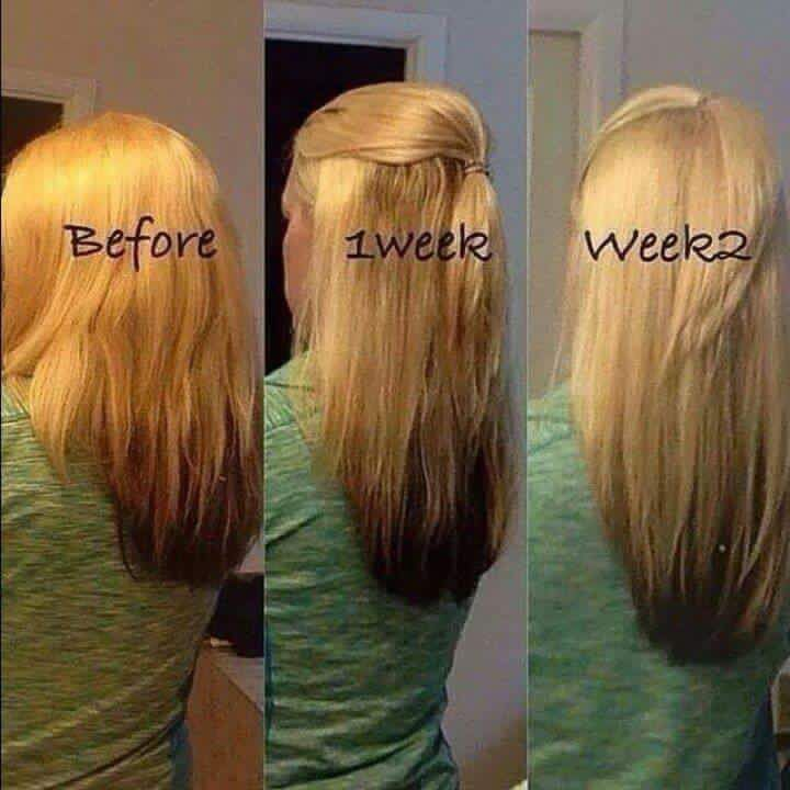 Amazing Hair Skin Nails Results Check Out Her Gorgeous