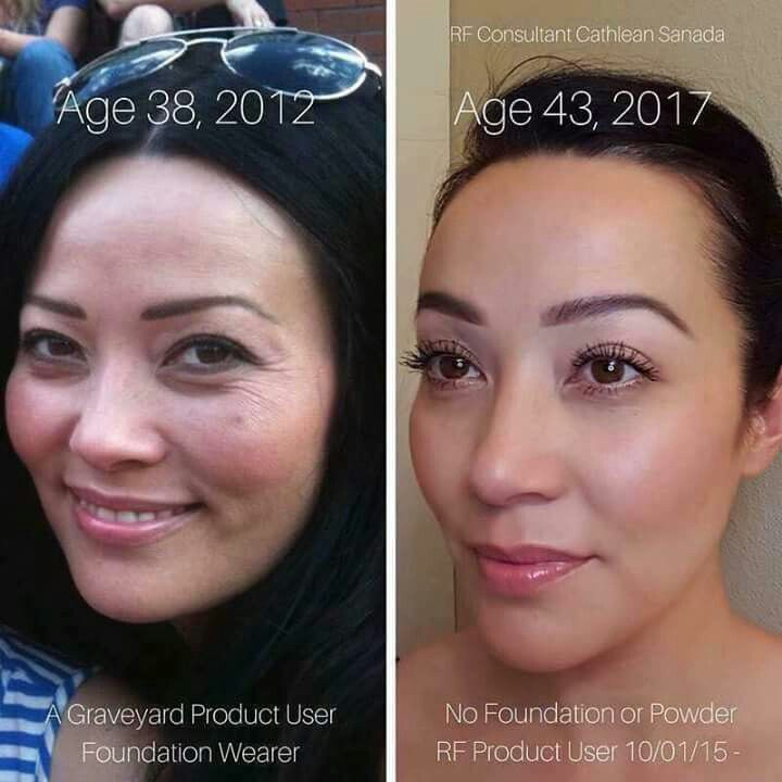 Wow 5 Years Can Really Make A Difference Especially When You Ve Started Using The 1 Rodan And Fields Sensitive Skin Treatment Sensitive Skin Care Routine