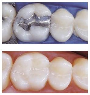 الحشوات التجميلية هي حشوات معالجة للسن بعدتعرضه لأي ضرر من التي قدتكون ناتجة عن تسوس أوكسور أوتشققات في طبقة Composite Fillings Amalgam Fillings Tooth Filling