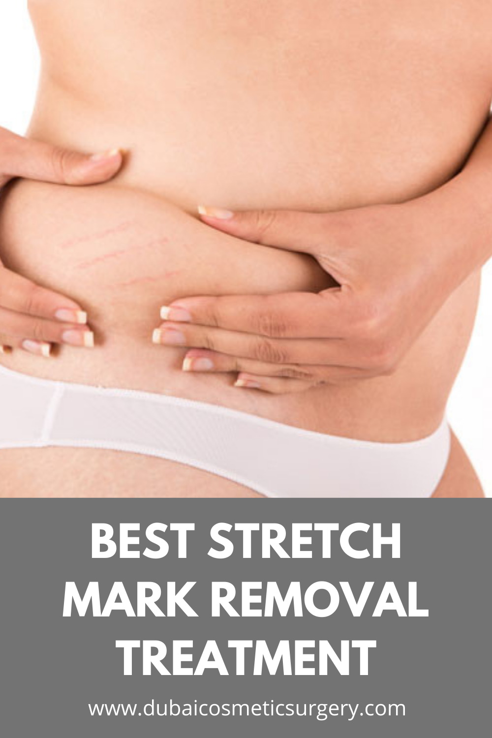 How To Get Rid Of Stretch Marks After Pregnancy Surgery
