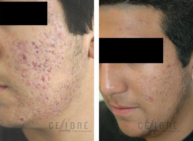 Antiaging skincare for men stepbystep idea for