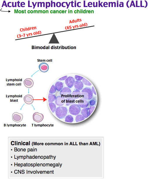 Acute Lymphocytic Leukemia (ALL) Rosh Review | Family