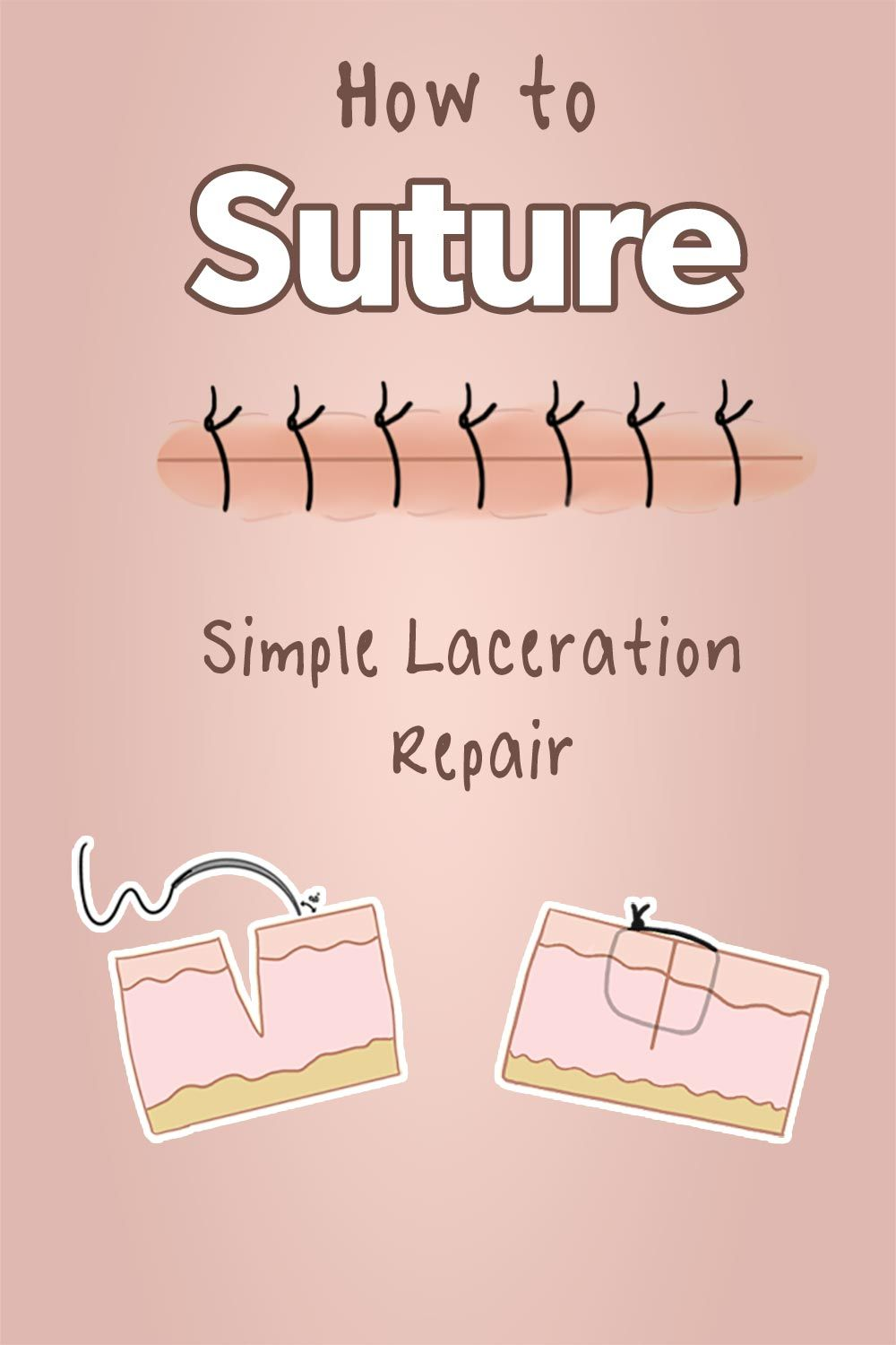 How To Suture Simple Laceration Repair Nursing Notes Sutures Fundamentals Of Nursing