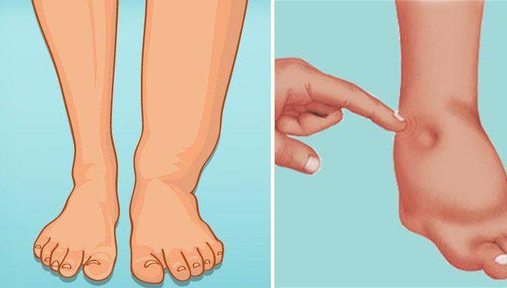 ¿Qué causa la retención de agua en las piernas y los pies?