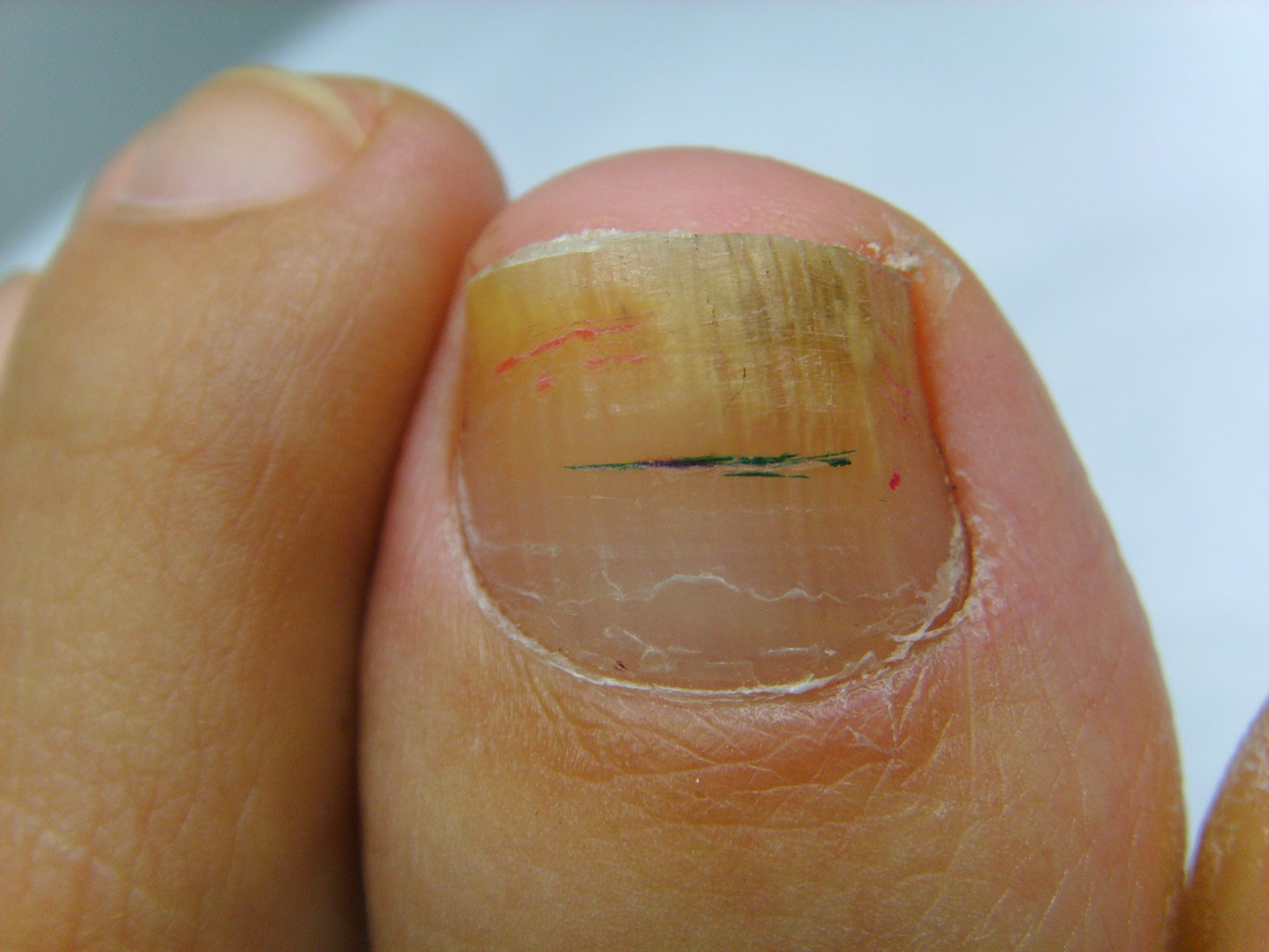 Big Toe Nail Fungus You can get more information about nail care at ...