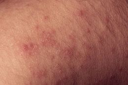 Bumpy Itchy Rash | Health | Itchy rash, Skin problems, Bumpy rash