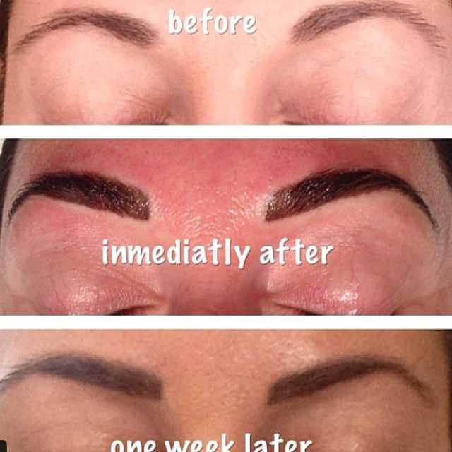 Before Immediately After And One Week After Permanent Eyebrows