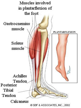 Posterior Tibial Tendon Rupture Health Library Health Library Muscle Anatomy Body Health