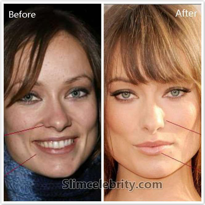 Celebrity Nose Jobs Before And After Photoshop Tutorial Nose Job Surreal Photoshop Tutorial
