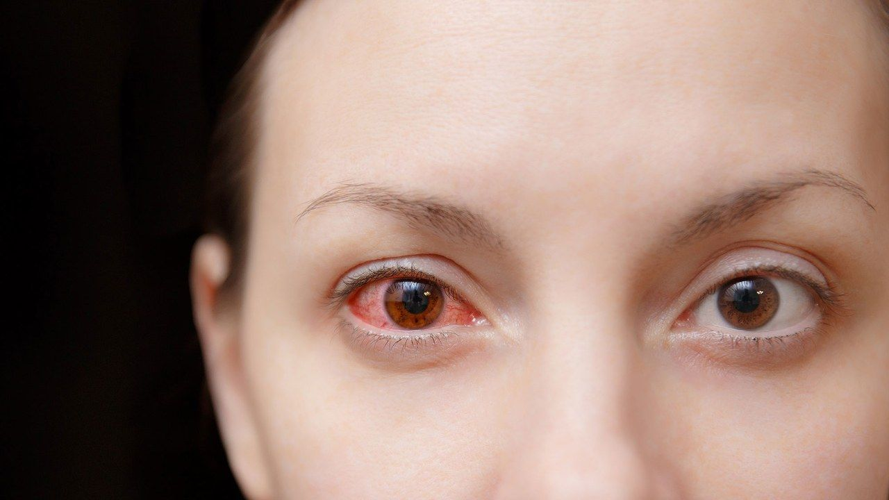 How To Get Rid Of Pink Eye Before It Comes