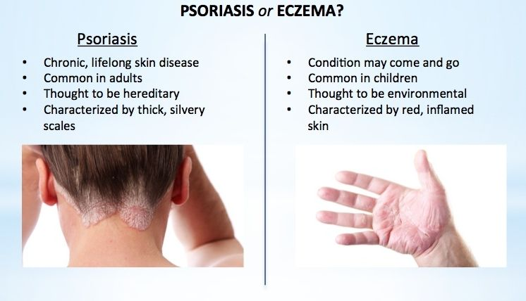 How To Tell If You Have Eczema Or Psoriasis And How To Get Rid Of