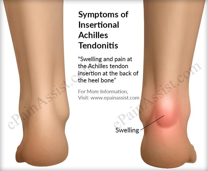 signs and symptoms of insertional achilles tendonitis medical