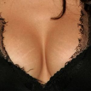 Stretch Marks on Breast: How to Remove Them