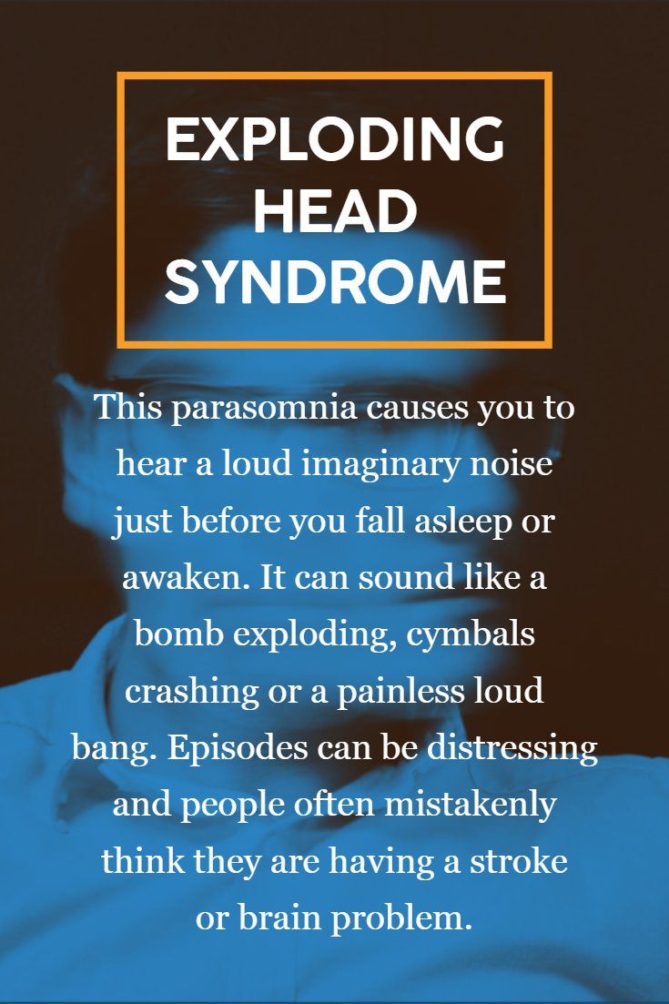 Exploding Head Syndrome Overview Facts In 2020 Exploding Head Syndrome Syndrome How To Fall Asleep