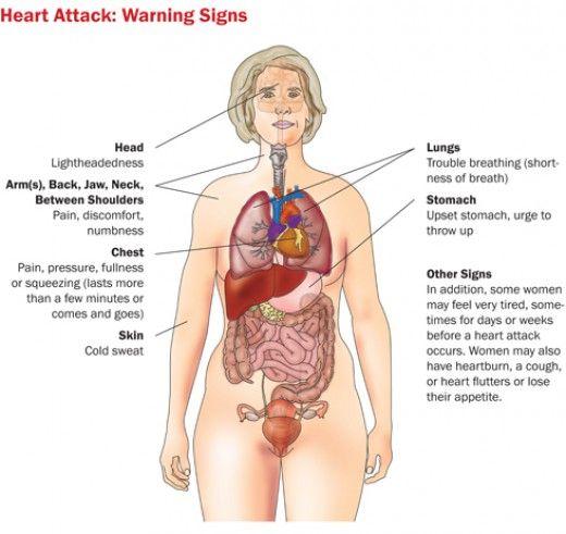 Heart Attacks Also Happen To Women Human Anatomy Pinterest