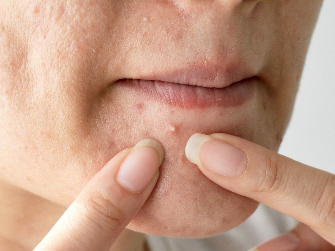 Tried And Tested Skin Care Tips Chest acne, Pimples
