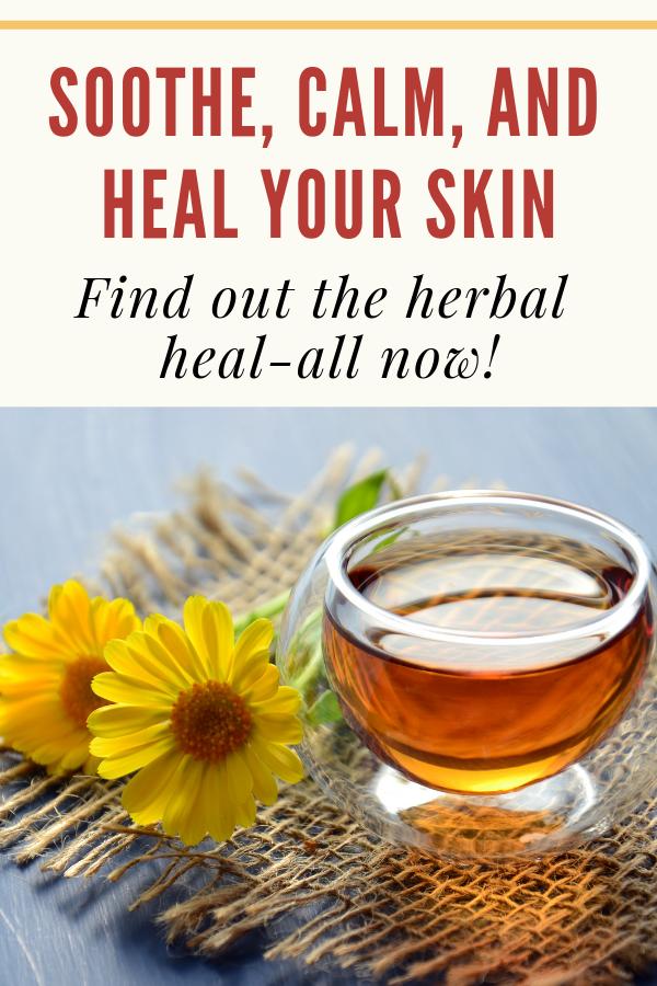 Calendula Skin Benefits + How To Make Your Own Treatments