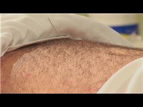acupressure for reflux   Acupuncture, Acupressure ...