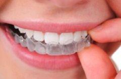 Clareamento Dental Caseiro Clareamento Pinterest