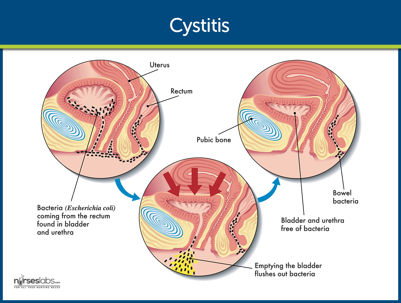 Natural Remedies For Cystitis Bladder Infection