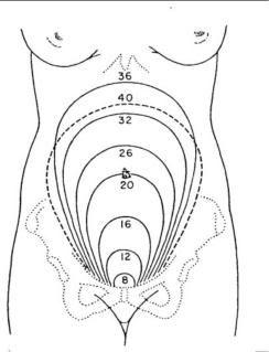 Random uterus position diagram pregnancy image ccuart Choice Image