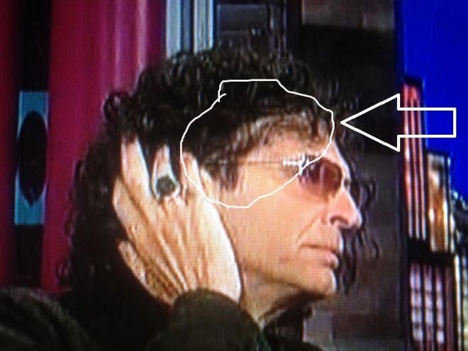 Howard Stern Hairpiece Celebrity Hair Transplants Pinterest